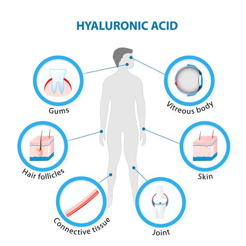 acido ialuronico epilate