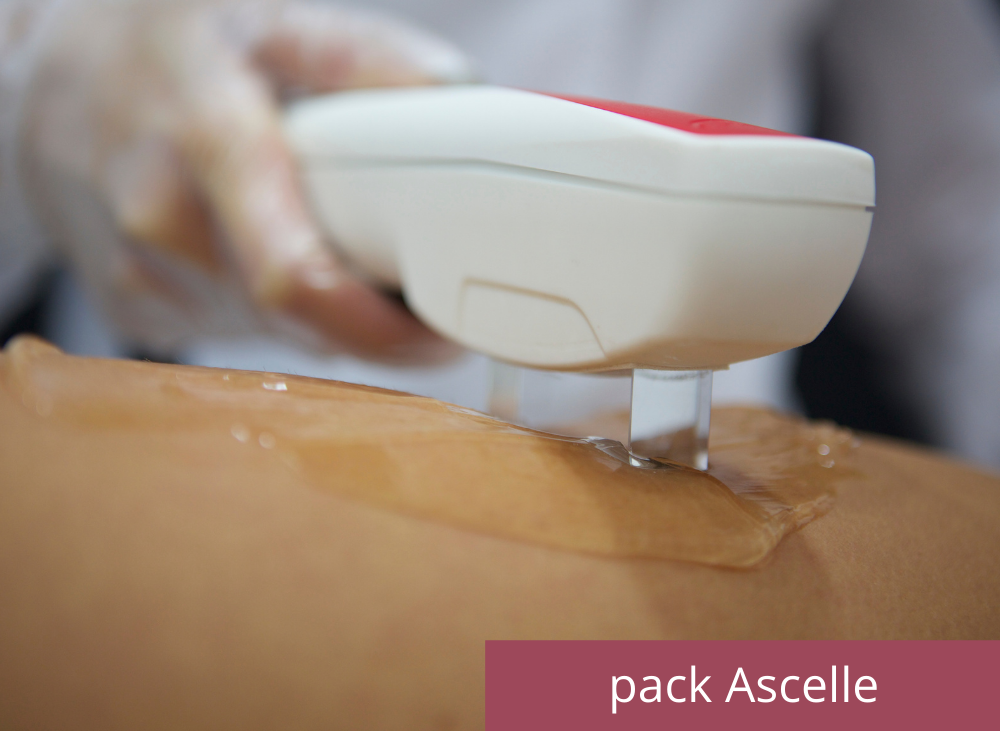 Pack ascelle a soli 199€